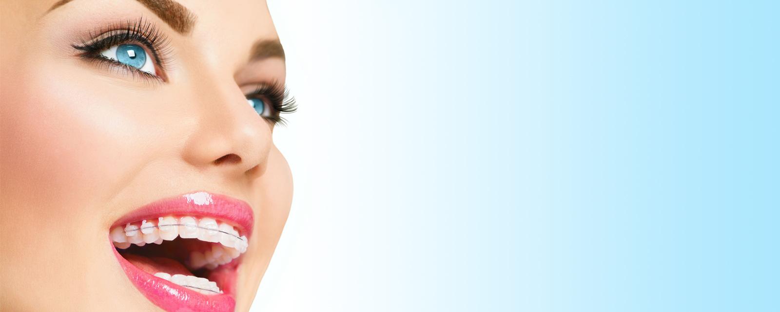 ortodontia-slide